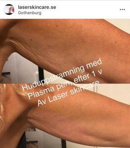 tatueringsborttagning före efter