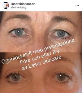 påsar under ögonen laser göteborg