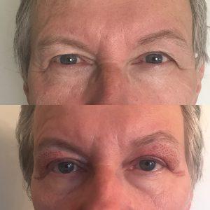 hifu behandling ansikte