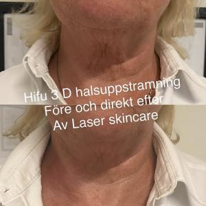 laser skincare göteborg