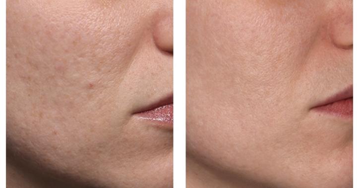 ta bort stora porer med laser